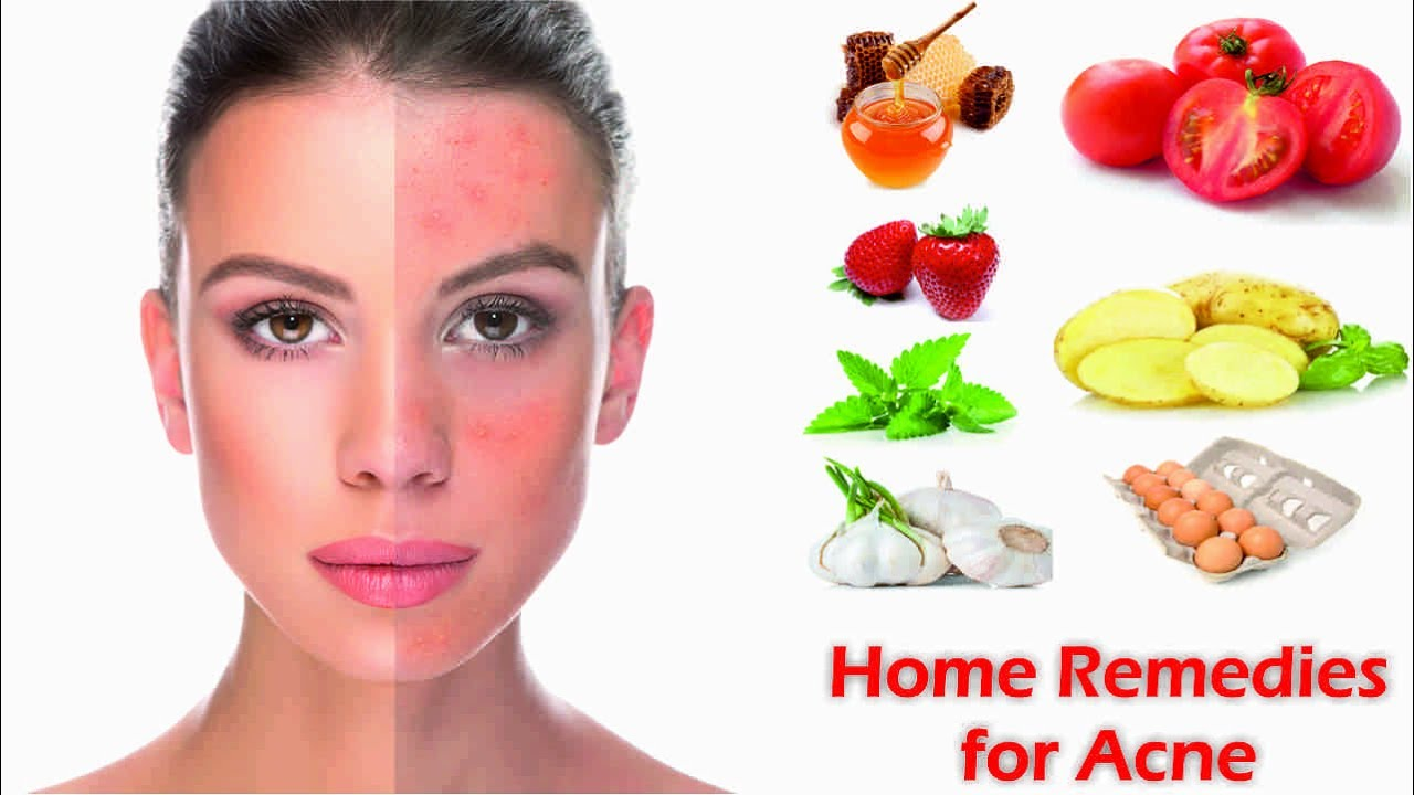 how to get rid of bad acne fast naturally