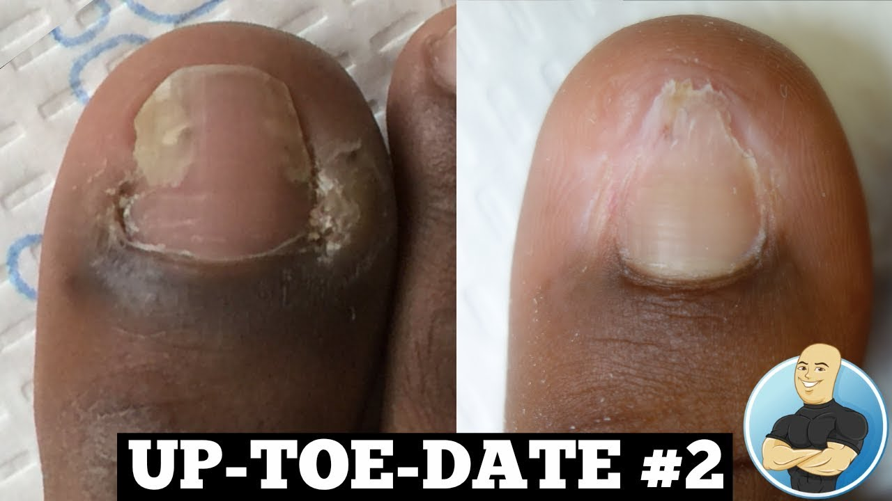 Before and After COMPLETELY HEALED!!! Ingrown Toenail Permanent ...