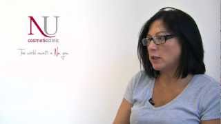 Laser Thread Vein treatment at Nu Cosmetic Clinic UK - shared by Donna Clancy Thumbnail