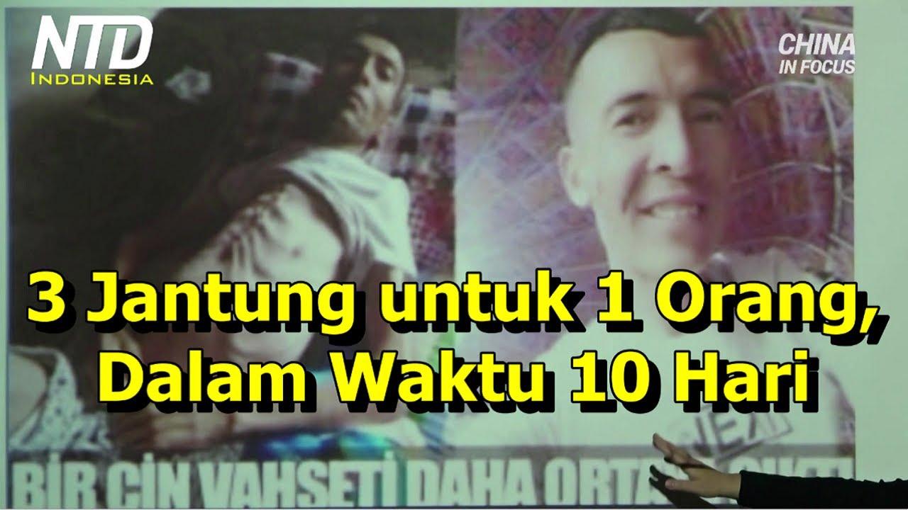 3 Jantung yang Cocok untuk 1 Orang, Diperoleh dalam Waktu Hanya 10 Hari