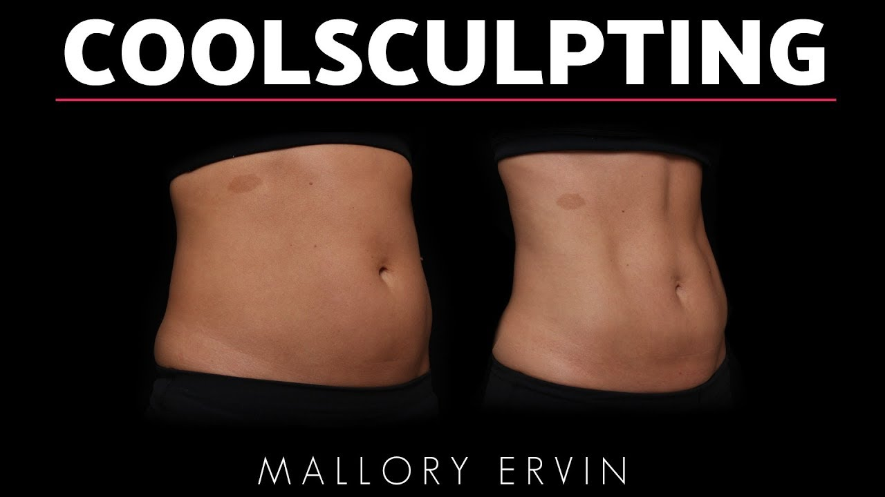 Mallory Ervin's CoolSculpting Before & After
