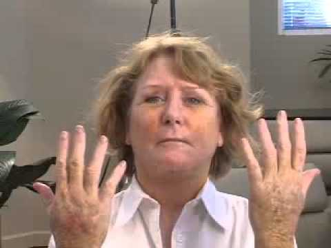 Hand Fat Grafting Video Journey 2 (with facial grafting)