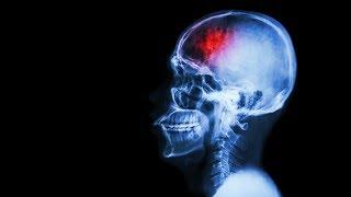 AVC: l'expérience d'un accident vasculaire cérébral racontée par...