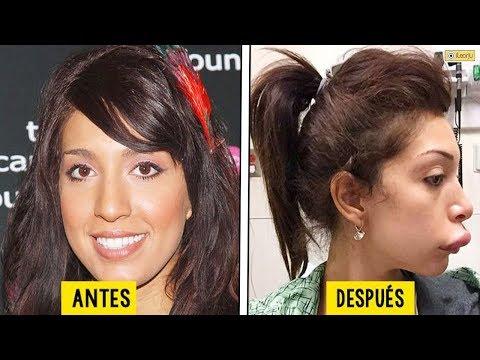10 Cirugías estéticas que TERMINARON TERRIBLEMENTE MAL.