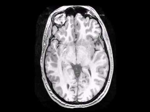 MRI of My Brain