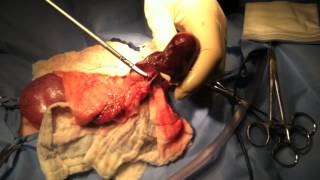 Splenectomy Thumbnail