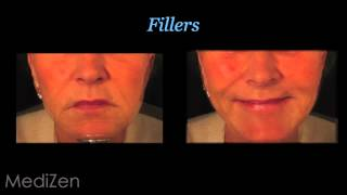 Before and After Photos of Rhinophyma Reduction and Other Treatment Results at MediZen Thumbnail