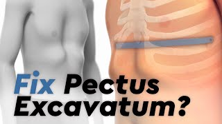 To learn more about Pectus Excavatum, please visit https://cle.clinic/2yd8GOF Hear success stories f.