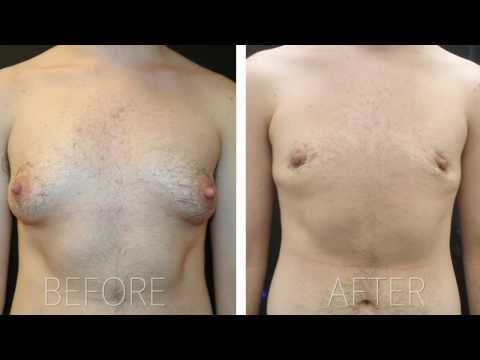 Female to Male Transition Surgery