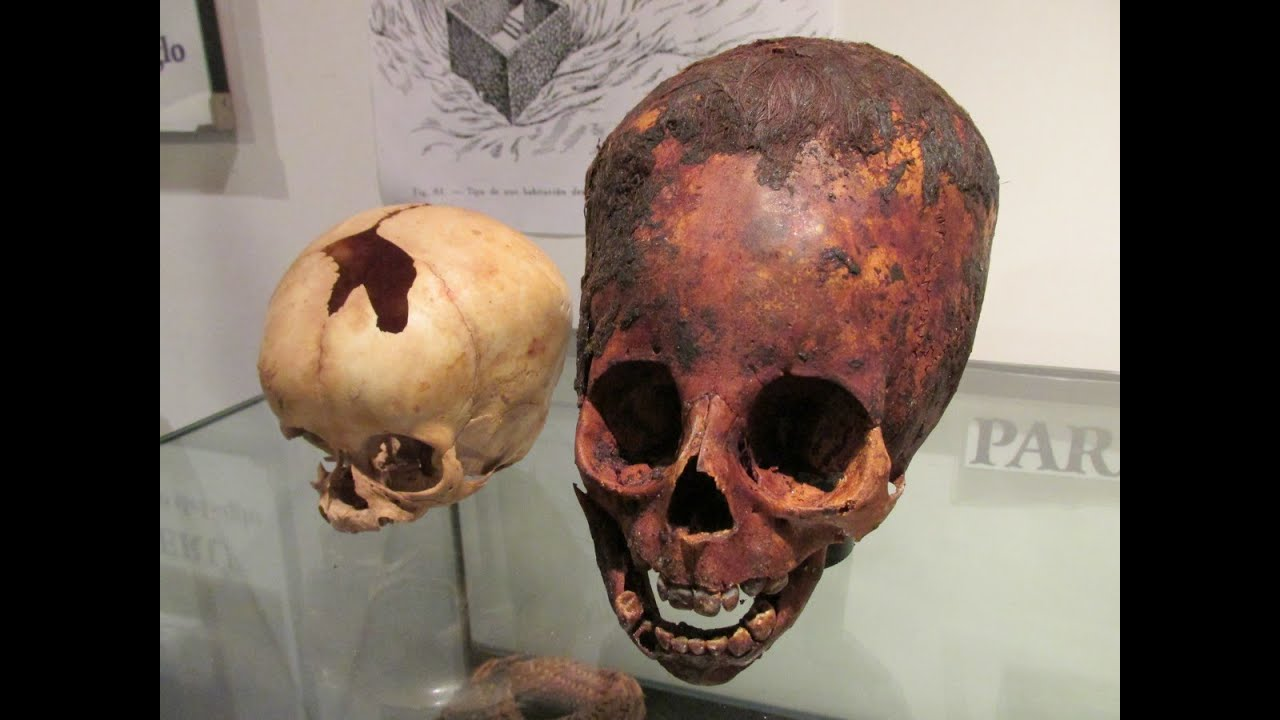 Unwrapping A 2000 Year Old Red Haired Elongated Baby Skull In