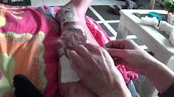 Bandage Removal after Surgery on Leg