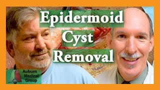 Repeat youtube video Epidermoid Cyst Removal INTACT| Auburn Medical Group