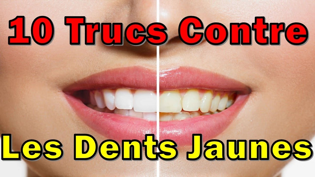 dents jaunes 10 trucs contre les dents jaunes youtube. Black Bedroom Furniture Sets. Home Design Ideas