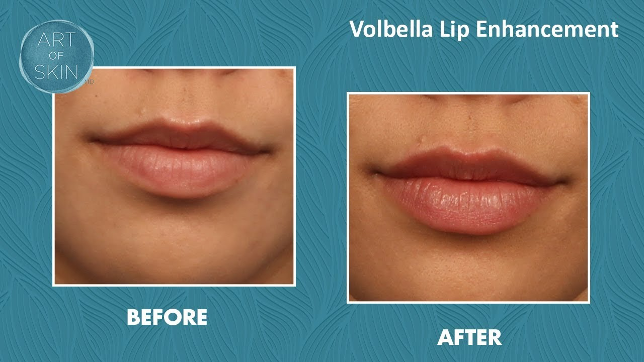 Volbella lip enhancement to vermillion border
