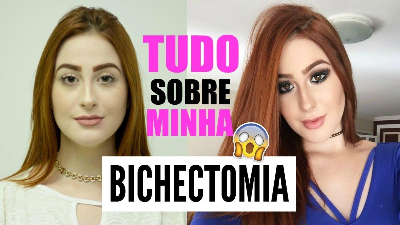 bichectomia antes e depois rosto redondo