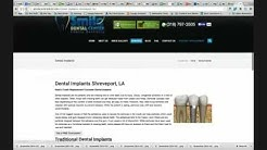 3 Dental Implant Marketing Ideas For New Dental Implant Patients