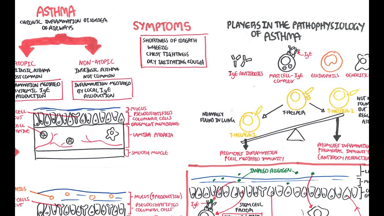 Asthma pathophysiology youtube nvjuhfo Choice Image
