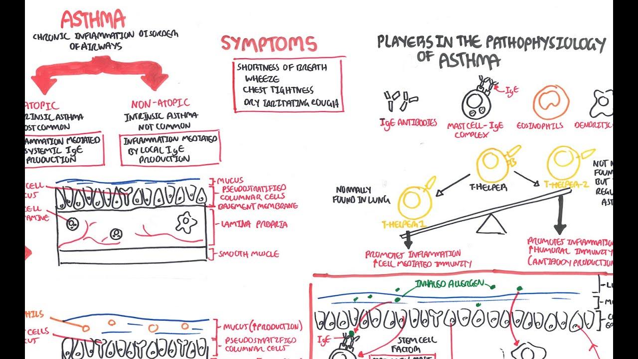 Asthma Pathophysiology  YouTube