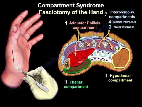 Compartment Syndrome Of The Hand & Finger - Everything You Need To Know -  Dr  Nabil Ebraheim