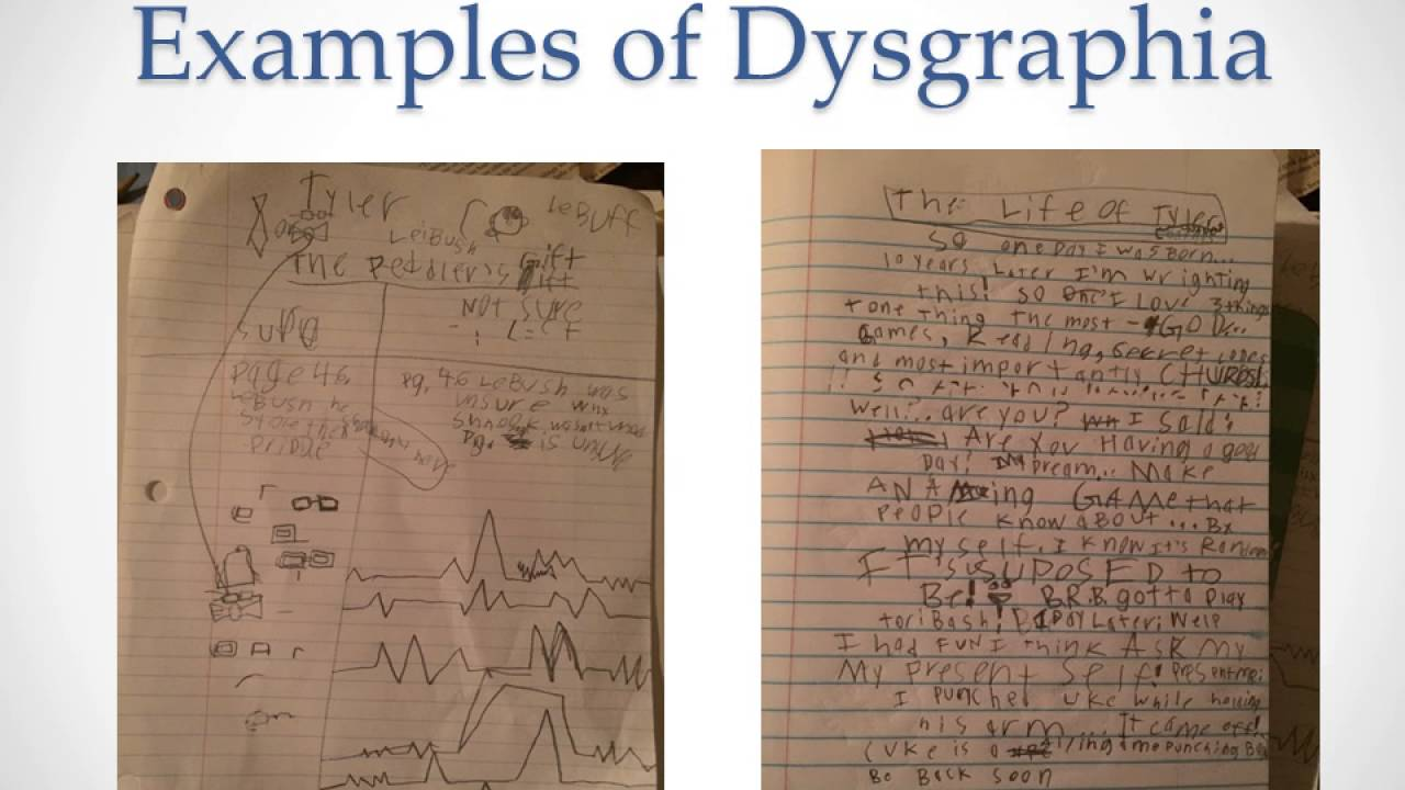 DYSGRAPHIA (PROBLEMS WITH WRITING)