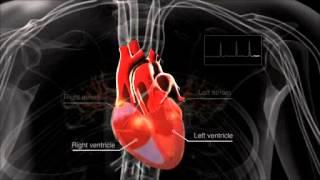 Video What is atrial fibrillation? download MP3, 3GP, MP4, WEBM, AVI, FLV November 2017
