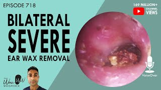 718 - Bilateral Severe Ear Wax Removal