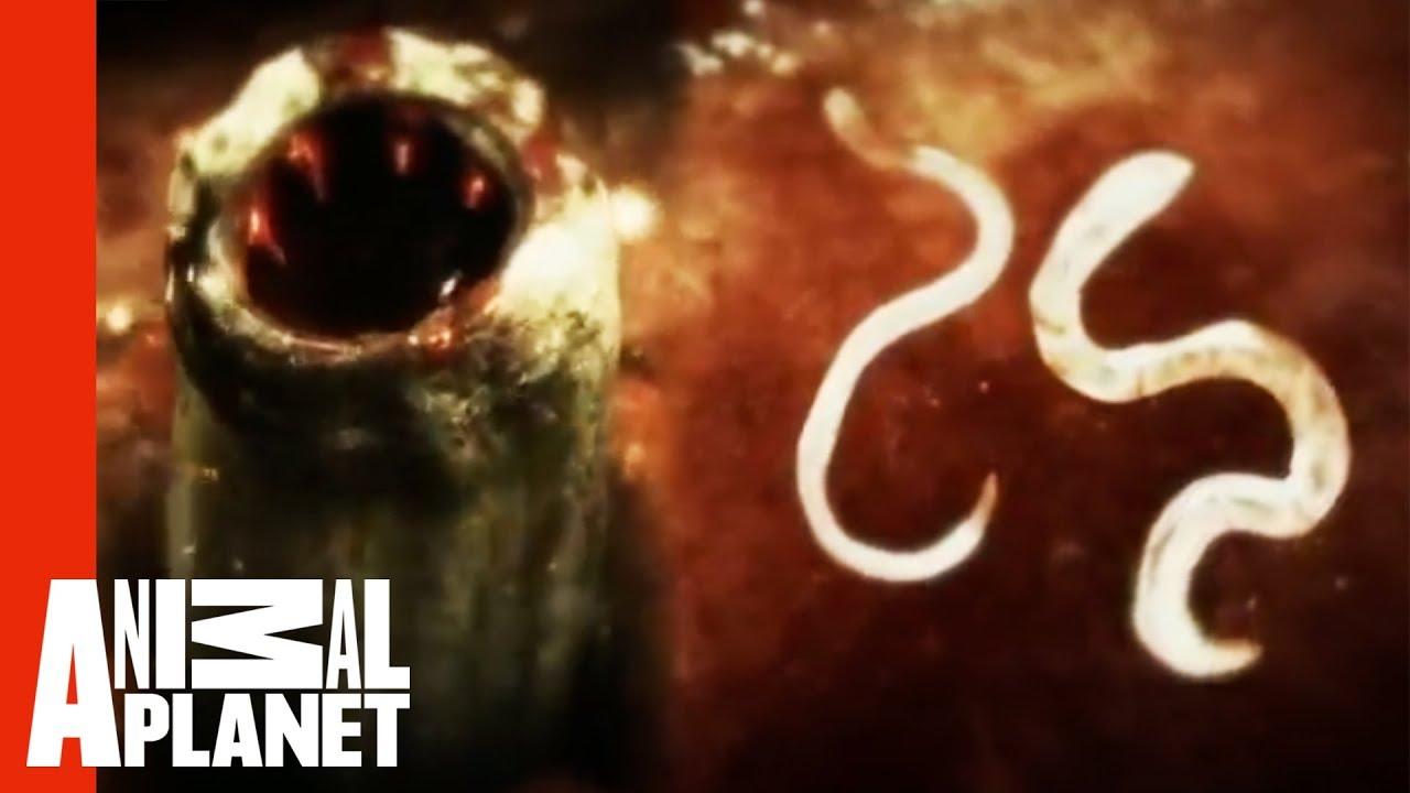 Download Killer Cat Scratch Causing Woman To Develop Hookworm | Monsters Inside Me