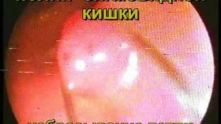 Осложнение колоноскопии. Перфорация кишки.(Колоноскопия проводилась в 2006 году. Показана электроэксцизия полипа сигмовидной кишки, которая осложнилас..., 2010-02-19T17:59:29.000Z)