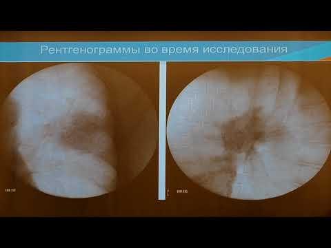 13 Максимов АП Рентген ассистированная Бронхоскопия при изменениях в Паренхиме Легких