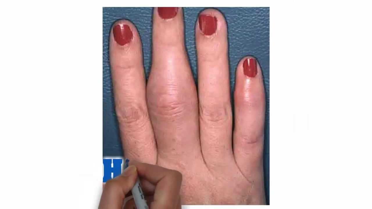dedo acido urico acido urico esame