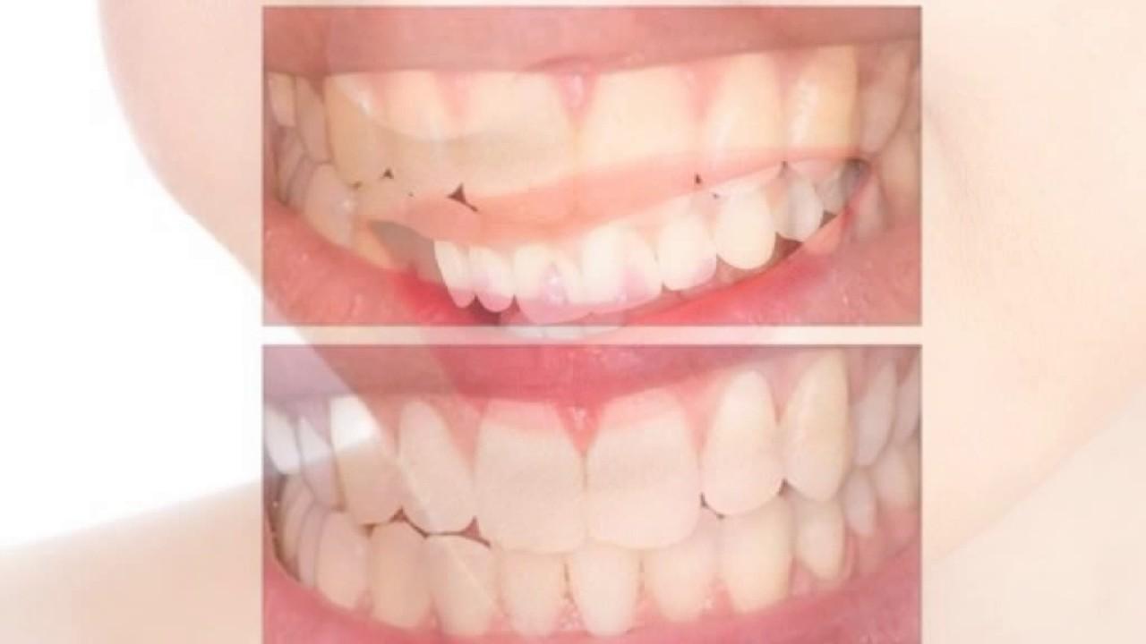 Promo 0821 8722 2577 Obat Pemutih Gigi Memutihkan Gigi Pasta
