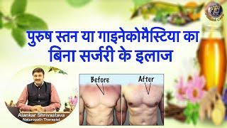 पुरुष स्तन या गाइनेकोमैस्टिया का बिना सर्जरी के इलाज | How To Treat Gynecomastia Without Surgery | screenshot 5
