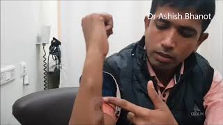 Multiple Lipoma Treatment Experience Recovery