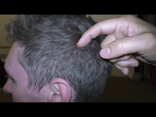 Dallas Hair Transplant Surgeon Dr. Sam Lam lectures on how hair should naturally grow on the head