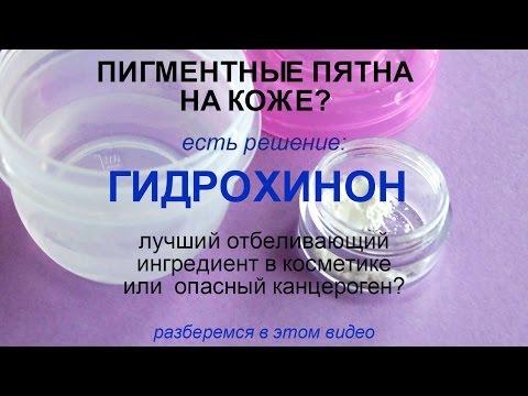 Пигментные пятна: применять гидрохинон или нет?