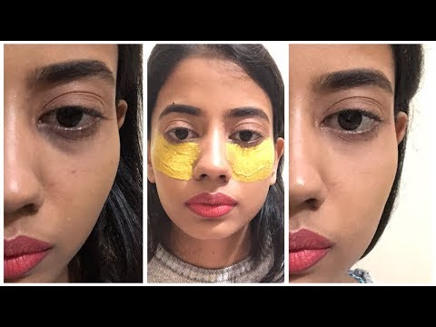 How I Got Rid Of My Dark Circles In 7 Days