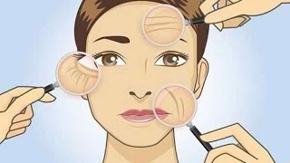 She Removed All Wrinkles Using This Homemade Cream Only For 1 Week