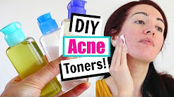 hqdefault - Homemade Skin Toner For Acne