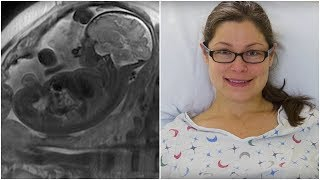 This Mom Gave Birth To A Healthy Baby  But When Doctors Saw Her Placenta, They Left It Inside Her