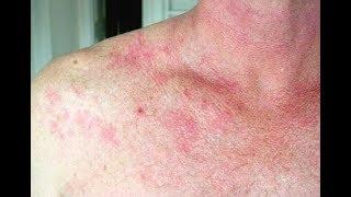 स्किन फंगल इन्फेक्सन के घरेलू उपाय (Home remedies for skin fungal infections)
