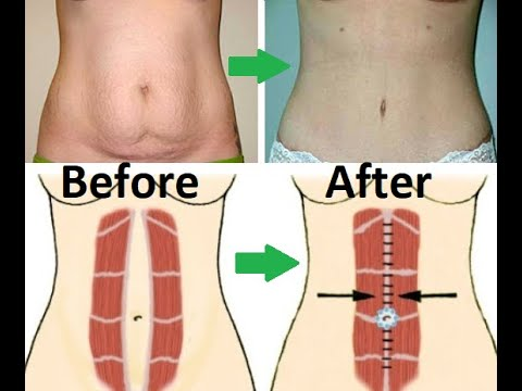 How to Lose Belly Fat After C Section | How to get flat ...