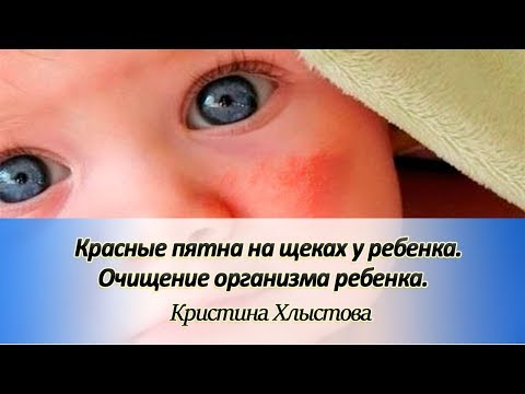 Красные пятна на щеках у ребенка. Очищение организма ребенка | Кристина Хлыстова