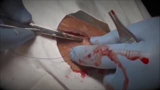 Worst Injuries! Knee Laceration Repair! Sew and Tell