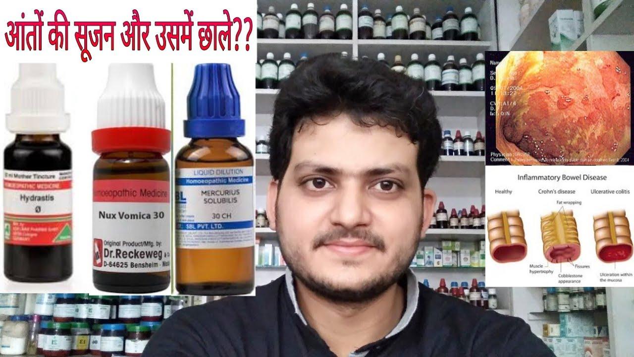 Ulcerative Colitis Homeopathic Medicine For Ulcerative Colitis Explain Youtube