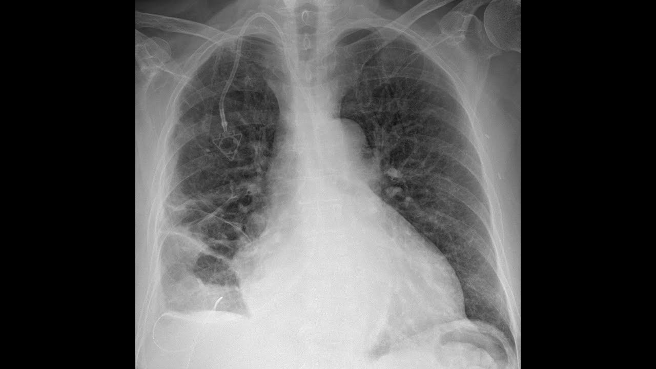 STR Cardiothoracic Case Webinar 3/26/2020