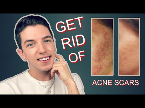 How to Get Rid Rid of Acne Scars Completely!