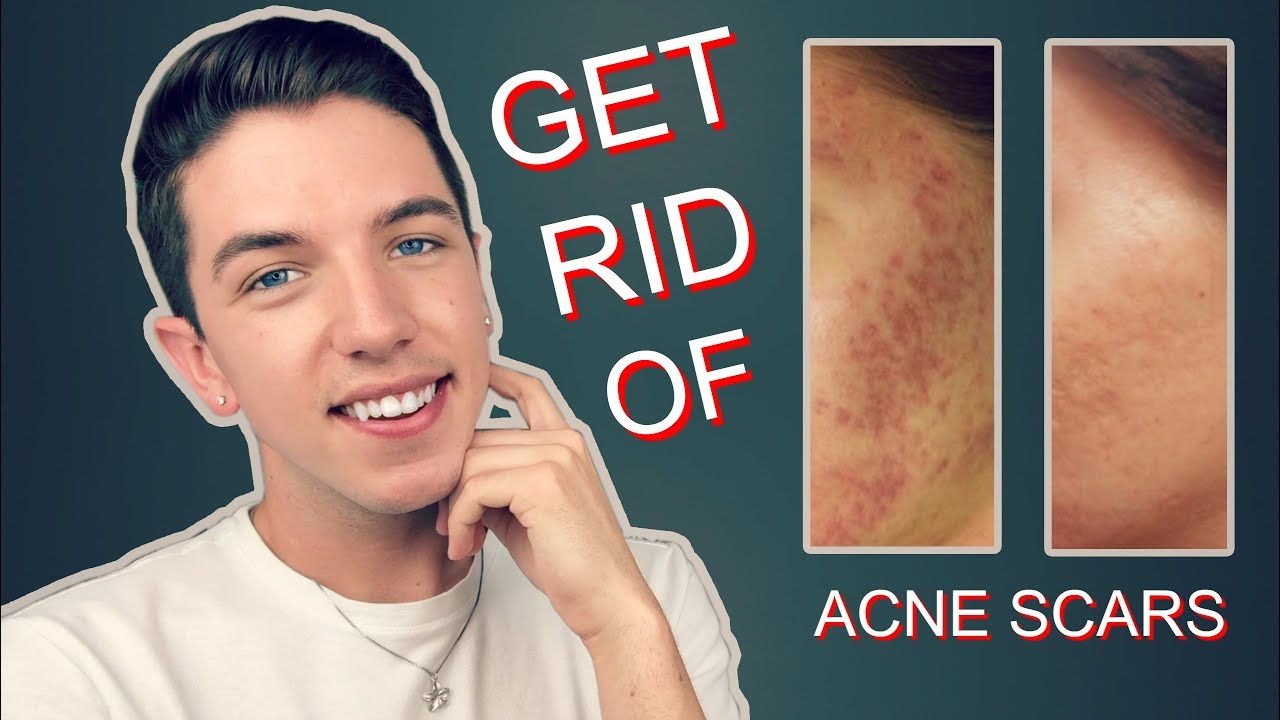How To Get Rid Rid Of Acne Scars Completely Youtube