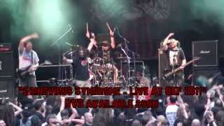 Squash Bowels - Grindvirus Syndrome - Live At OEF 2011 - DVD trailer HD