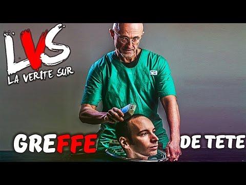 LVS: La PREMIERE GREFFE DE TETE