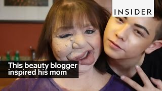 This beauty blogger inspired his mom to embrace her birthmark